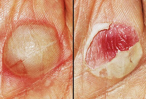 Keep blisters bandaged if they are on areas where they might get rubbed, like the bottom of the feet.