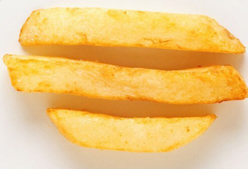 Photo of french fries.