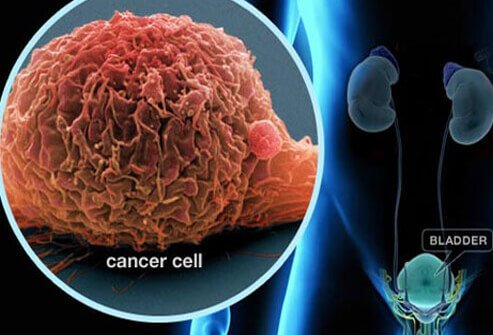 Picture of Bladder Cancer