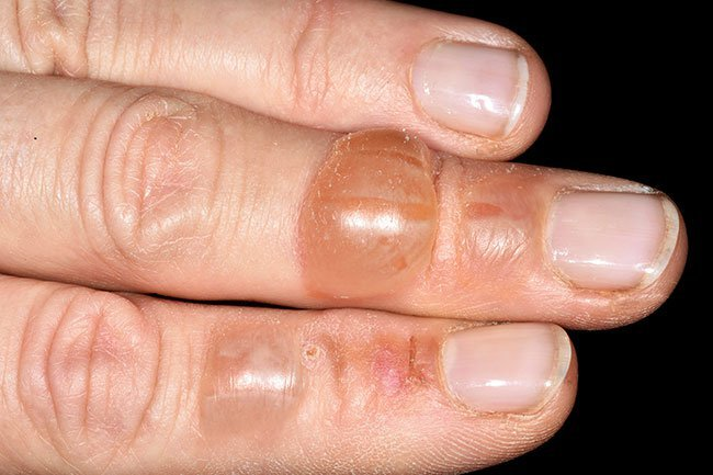 Blisters are fluid filled circular pockets of skin.