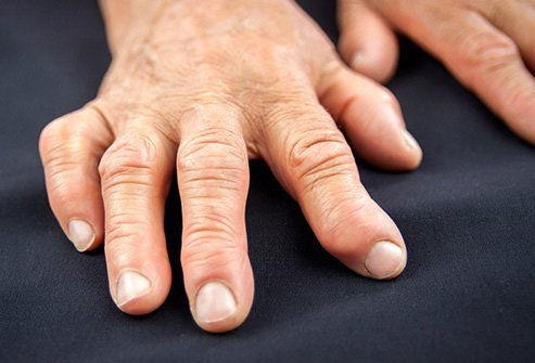 The stiffness and swelling of arthritis causes body pain.