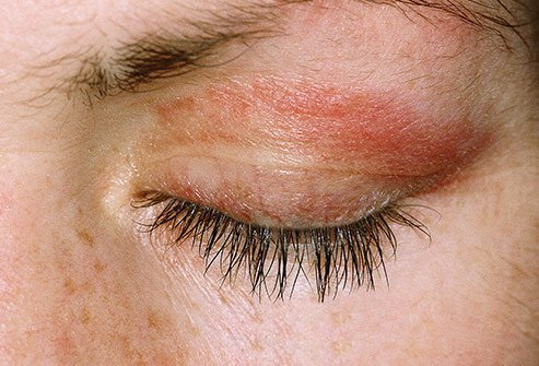 Eyelid rashes are a symptom of dermatomyositis, an autoimmune disease.
