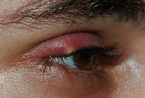 A sty (stye) is a tender, painful red bump located at the base of an eyelash or under or inside the eyelid.