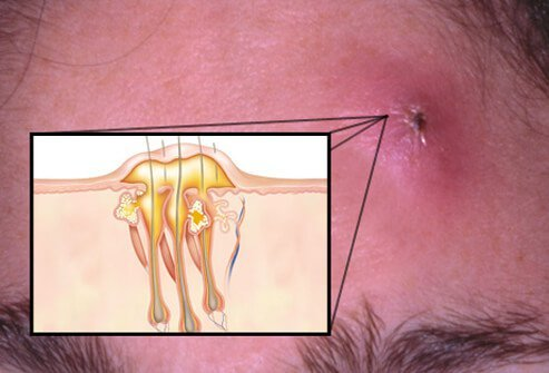A boil (furuncle) or carbuncle is an abscess in the skin caused by the bacterium <i>Staphylococcus aureus.</i>