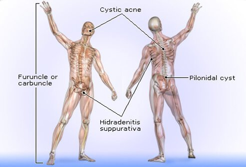 Several types of boils can develop on different parts of the body.