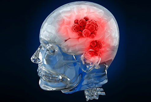 Brain tumors occur from a variety of cell types in different locations in the brain.