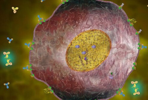 Having this receptor means the cancer tends to grow and spread faster than other forms of breast cancer.