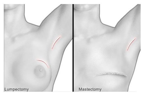 Breast cancer surgery.