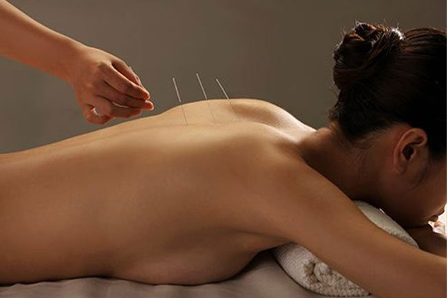 Acupuncture may help boost your immune system and release natural painkillers.