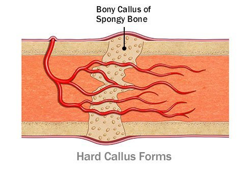 A hard callus is spongy bone that forms in the space between broken pieces of bone.