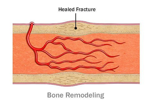 Bone remodeling results in new bone formation.