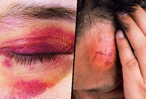 Bruises come in different shapes and sizes.