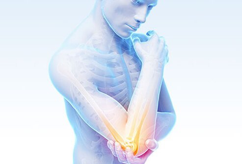 3d illustration of a human model with elbow pain.