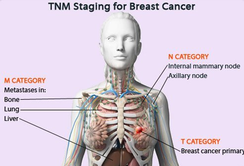 Tumor, Node, Metastasis (TNM) staging for breast cancer.