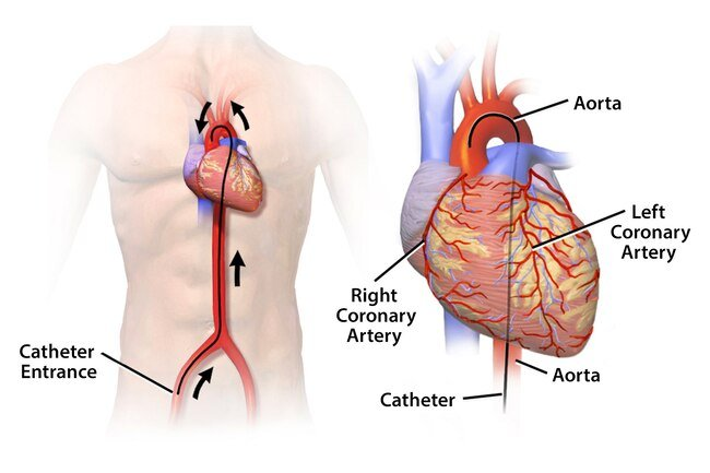 Your doctor may put a soft, thin tube called a catheter into a blood vessel in your neck, arm, or upper thigh and guide it to your heart.