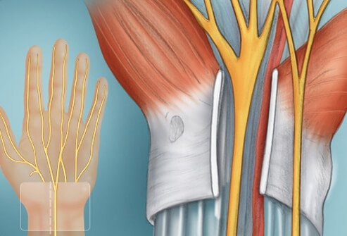 Illustration of Carpal Tunnel.