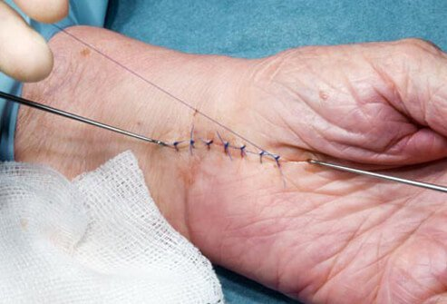 Photo of stitches in hand.