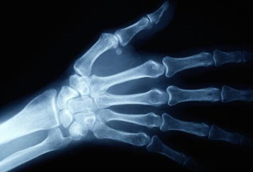 Photo of hand x-ray.