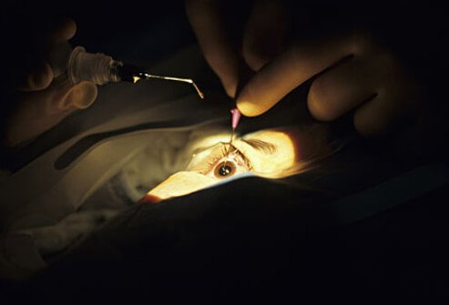 Photo of eye surgery for cataracts.