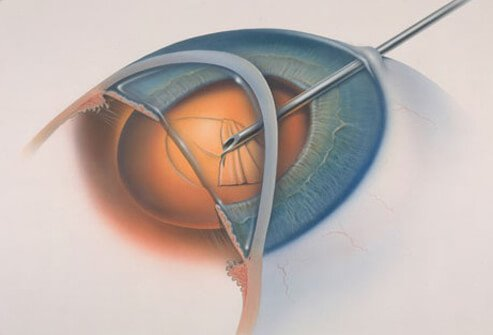 Illustration of cataract surgery.
