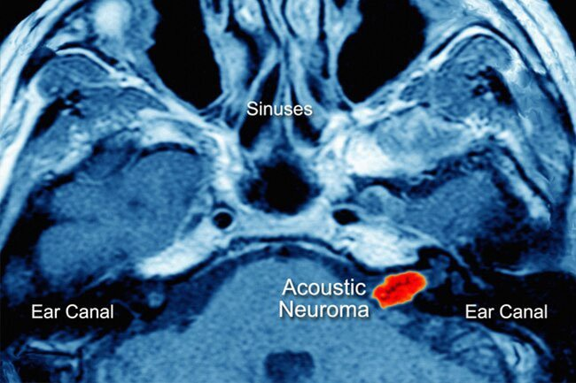 Sometimes a slow-growing, benign tumor develops around the nerves that control balance and hearing.