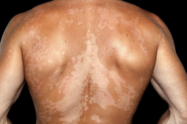 Vitiligo is a condition that causes skin discoloration when you lose melanin-producing cells.