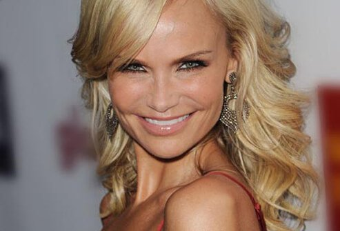 Actress and singer Kristin Chenoweth nursed a migraine after winning an Emmy in 2009.