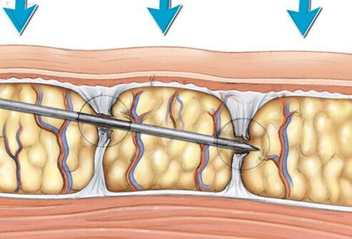 This is a surgical technique whereby the bands of dermal fibrous tissue are severed by a needle.