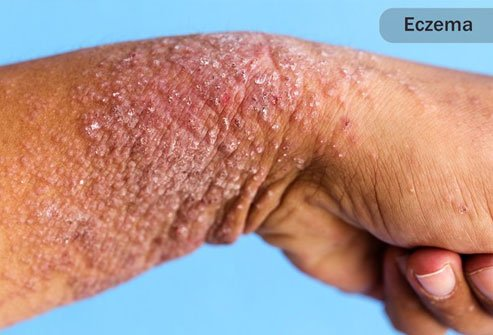 Skin conditions like eczema increase the risk of cellulitis.
