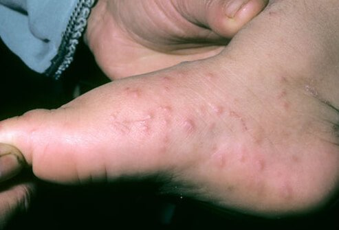 Closer look at hand-foot-and-mouth disease.