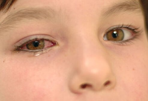 A child with pink eye.