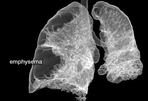 CT scan of lungs with emphysema.