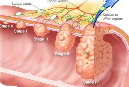 colon cancer symptoms signs screening stages. Black Bedroom Furniture Sets. Home Design Ideas