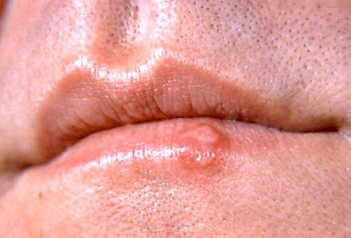 Cold sores commonly appear on the edge of the lip.