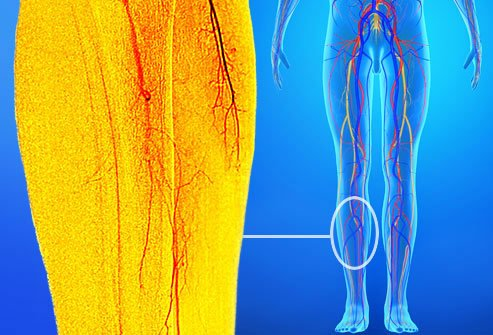 Peripheral artery disease causes cramps in the lower legs.