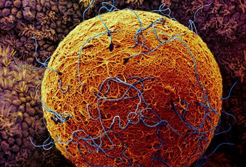 Photo of sperm cells surrounding the human egg in the fallopian tube.