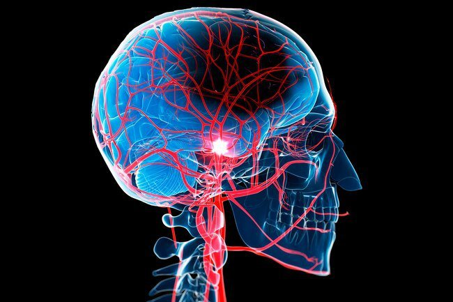 Women are more likely than men to have unusual symptoms associated with stroke.