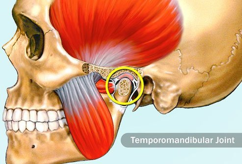 TMJ pain may cause pain in your teeth when you chew.