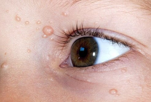 Molluscum contagiosum is a viral infection that causes raised bumps .