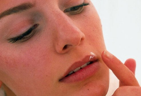 Antiviral creams may reduce healing time, but these must be applied at the very first sign of an outbreak.