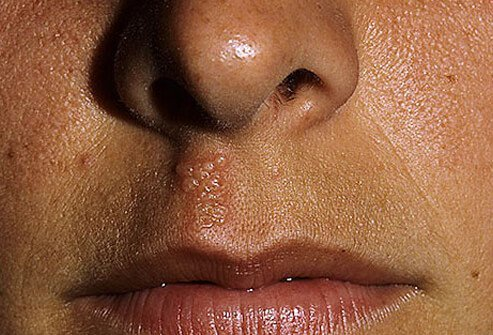 Cold Sore Between Nose and Mouth Picture Image on