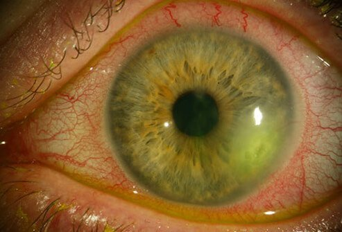 HSV can infect the eye (ocular herpes) or the finger (herpetic whitlow).