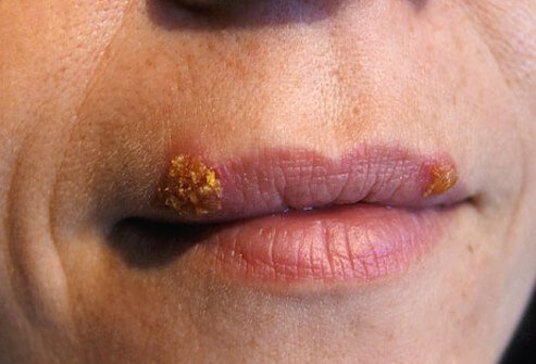 Topic simply herpes sores on mouth and