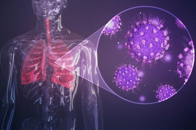 Another drug that showed promise fighting SARS, Interferon Beta is being tested for COVID-19.
