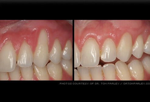 Gum recession can expose tooth roots.