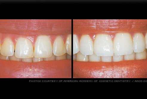 Gum reshaping can be done to improve a smile if the gum line is irregular or if the teeth appear too short.