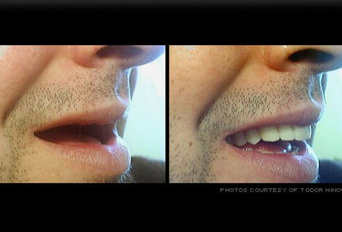 Profile of a smile with and without dentures in place.