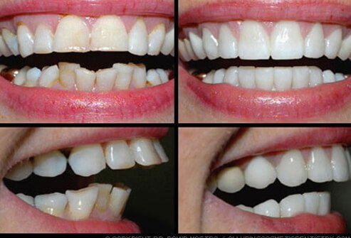 Picture of Dental Makeover