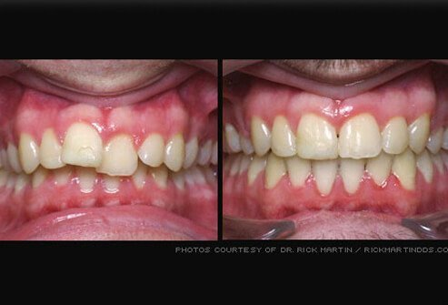 Angelina Jolie Teeth Before And After