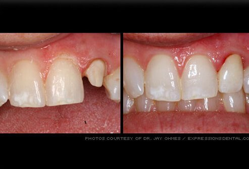 Dental Crown Picture Image On Medicinenet Com